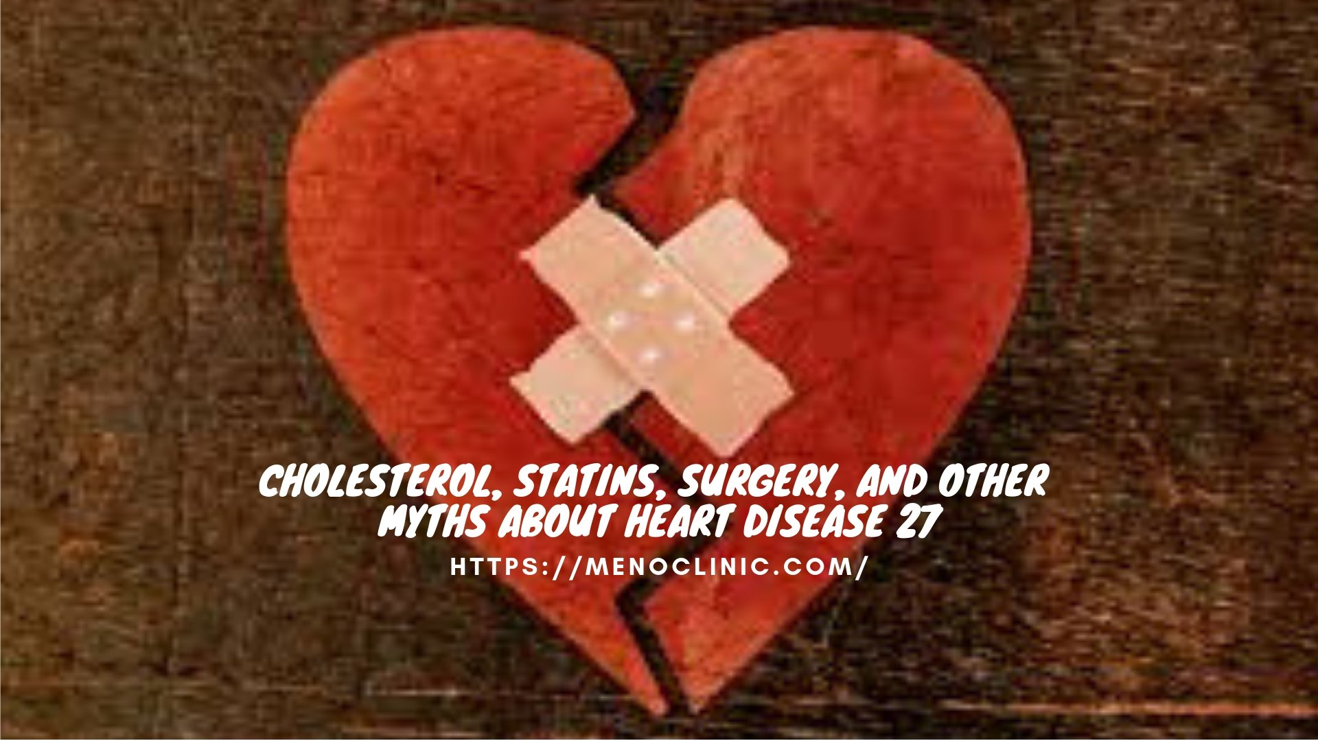 Cholesterol, Statins, Surgery, and Other Myths About Heart Disease 27